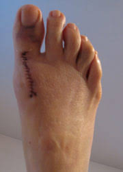 Comfortable Shoes After Foot Surgery My Bunion Surgery