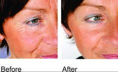 blue and red light therapy for acne reviews go for red light from wrinkles to cold sores red light therapy is