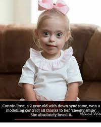 Syndrome Of A Down Meme - connie rose a 2 year old with down syndrome won a modelling contract