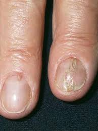 what are the white spots on your nails trying to tell you