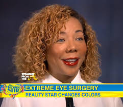 tiny color tiny harris eye color surgery straightfromthea 3