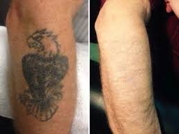 clean canvas laser tattoo removal houston voted best by houston