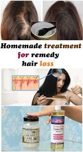 best 10 hair loss treatment ideas on pinterest grow hair