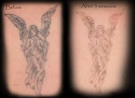 laser removal gallery 18 to life tattoo studio
