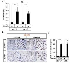 chemistry 4 supplement and laboratory manual ripk1 ripk3 mlkl dependent necrosis promotes the aging of mouse