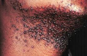 constant ingrown hairs on pubis how to get rid of ingrown hair cyst and treatment 2018 updated