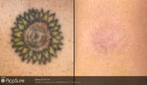 picosure laser tattoo removal before and after photos