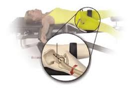 surgical table for anterior hip replacement direct anterior hip replacement cardiff marci maheson surgeon