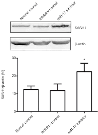 mir 17 enhances proliferation and migration and inhibits apoptosis
