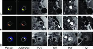 automated versus manual in vivo segmentation of carotid plaque mri