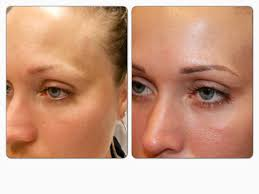 tattooed eyebrows before and after free here
