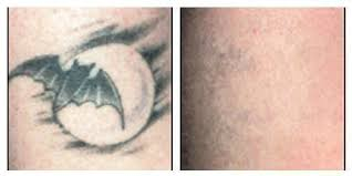 laser tattoo removal scottsdale az tempe az perfect skin center