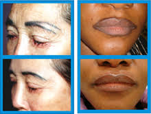 laser tattoo makeup removal mugeek vidalondon