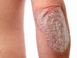 psoriasis treatment psoriasis treatment bangalore best doctor for psoriasis india