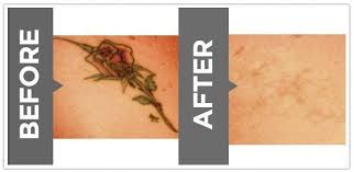 laser tattoo removal cincinnati unwanted tattoos cincinnati