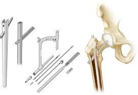subtrochanteric fractures intramedullary fixation