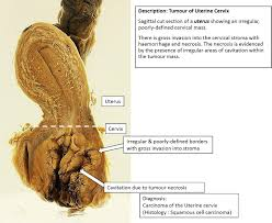 Human Anatomy Cervix Exercise Qn 2 Answer Pathology Demystified