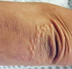 itchy bumps on hands that spread bumps on elbows causes how to get rid of small itchy red rash
