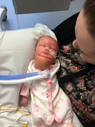 baby who was born with a massive neck tumor celebrates first new year