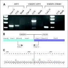 ewsr1 creb1 and ewsr1 atf1 fusion genes in angiomatoid fibrous