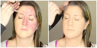 Non Comedogenic Halloween Makeup by This Acne Makeup Makeover Post Has Gone Viral U2014and It U0027s Causing A
