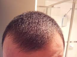 Antidepressants And Hair Loss Ssri Hair Loss Best Hair Loss 2017