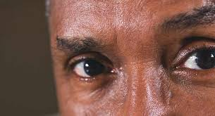 Sudden Blind Spot In Both Eyes Eye Stroke Symptoms Causes And More
