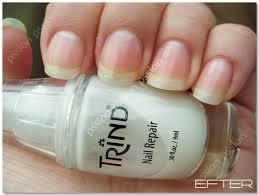 trind nail repair resultatet pssion