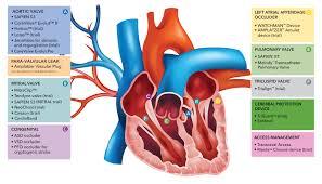 Guidewire Resume Treatments Archive Medstar Heart U0026 Vascular Institute