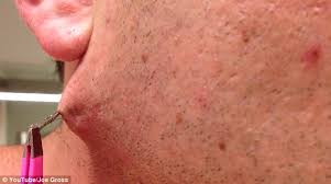 why do ingrown hairs hurt man pulls world s longest ingrown hair out of his face daily