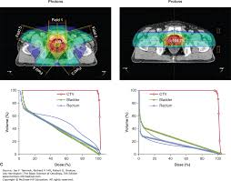 tumor and normal tissue response to radiotherapy the basic