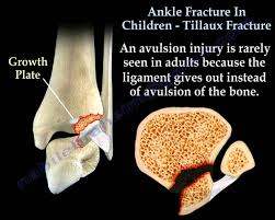 Fibular Avulsion Ankle Fracture In Children Tillaux Fracture Everything You Need
