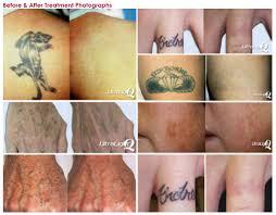 tattoo removal process tattoo love