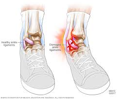 Collateral Ligaments Ankle Sprained Ankle Symptoms And Causes Mayo Clinic