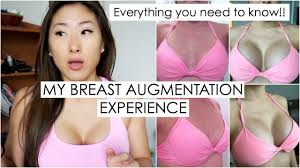 breast augmentation experience costs size pain type before
