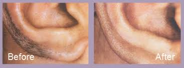 male pubic hair removal photos before and after laser hair removal st louis cosmetic surgery center