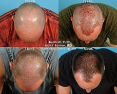 neograft recovery timeline follicular unit extraction with neograft fue bauman medical group