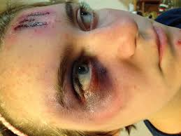 special effects airbrush makeup airbrush makeup bruise and scratches special effects