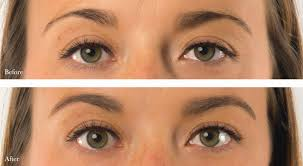 How To Shape Eyebrows With Tweezers Quick And Easy Fixes For The Most Common Eyebrow Problems 100 Pure