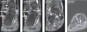 Posterior Inferior Tibiofibular Ligament The Ankle Musculoskeletal Key