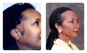 hair transplant for black women hair loss in women hair restoration results bosley bosley