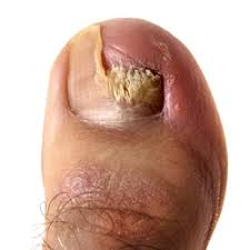 nail fungal infection pittsburg ks wilde foot u0026 ankle clinic