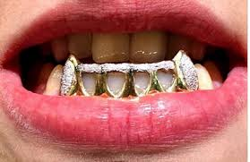 diamond stud on tooth 14k gold overlay removable gold teeth caps grillz mold kit 6