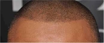 scalp head tattoo style hairsite com