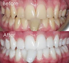 teeth whitening treatment centre for dentistry