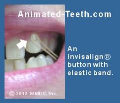 invisalign works attachments buttons u0026 elastic bands