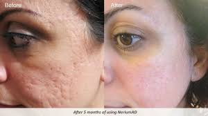 light therapy for acne scars overnight acne treatments homemade what works best for acne scars