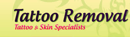 tattoo removal companies tattoo removal