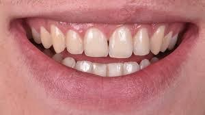 pro light dental whitening system reviews external dental bleaching styleitaliano