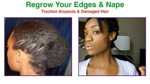 ideas for hairstyles for damaged edges how to regrow protect thin damaged edges nape traction